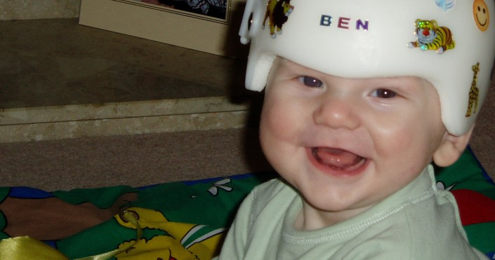 What is plagiocephaly and brachycephaly? How could my baby have developed one of these conditions?